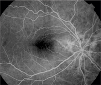 Note The Prominent Epiretinal Membrane In This Patient