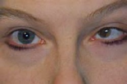 The same patient after being fit with a hand-painted, custom designed contact lens to create better cosmesis.