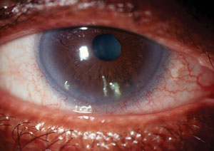 Customized Solutions for the Dry Eye Patient