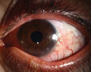 bausch lomb steroid eye drops