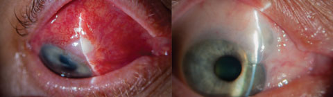 Blebitis (left) and over-filtration of a bleb (right) are among complications associated with more invasive surgeries such as trabeculectomy. MIGS, in contrast, provide better safety profiles, fewer complications and faster recovery times.