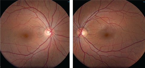 Figs. 1a and 1b. Fundus photos of our 26-year-old female patient's right and left eyes at clinical presentation.