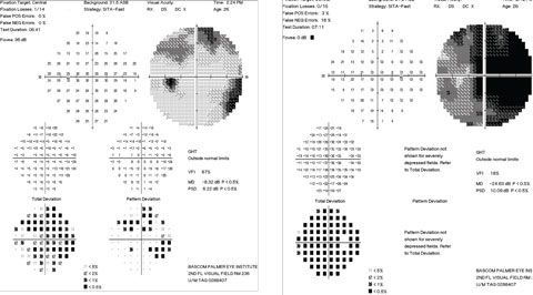 Figs. 3. Our patient's visual field test results at initial clinical presentation. Note the findings in the left eye (at right).