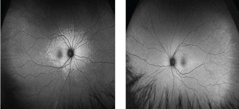 Fig. 5. Note that the right eye (at left) shows patchy hyperautofluorescence around the optic nerve and macula, while the left shows the normal uniformly diffuse autofluorescence in these FAF images.