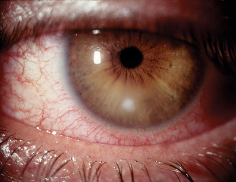 Small noncentral corneal ulcers such as this are typically treated successfully empirically, while larger or more sight-threatening lesions may require culturing.
