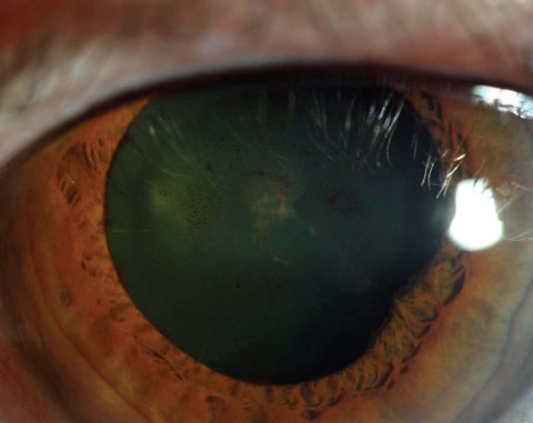 Resolution of the plaque should occur after episode has been controlled, but cataract may result.