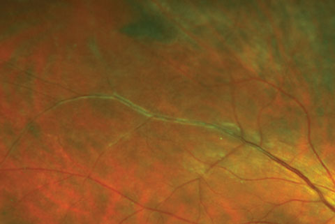 Here, venous sheathing was caused by early periphlebitis as seen in sarcoid uveitis. The vasculitis in these cases may become occlusive and lead to BRVO.