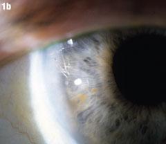 Comanaging Cataract Surgery Complications