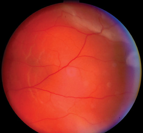 This 57-year-old male's retinal detachment occurred seven months after cataract surgery in his left eye.
