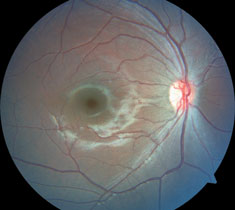 Do these fundus photographs provide any explanation for our patient's blurred vision?