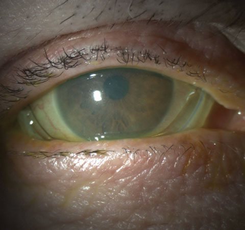 Dealing With Dry Eye In The Present And In The Offing