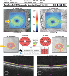 Fig. 2. OCT ganglion cell analysis demonstrating overall ganglion cell/inner plexiform layer thinning compared with normative data.