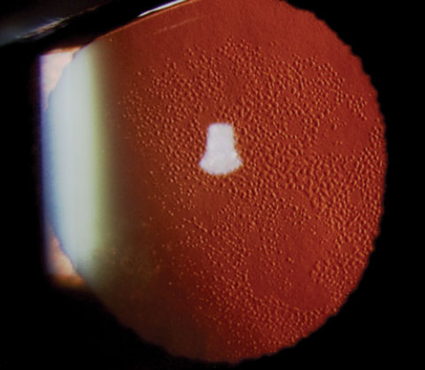 A case of Fuch's dystrophy shown in retroillumination.