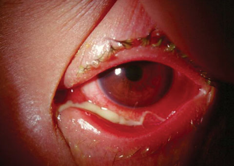 Besifloxacin Ophthalmic Besifloxacin Ophthalmic new picture