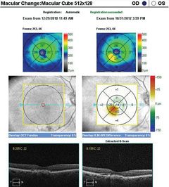 SD-OCT macular change analysis demonstrating the development of DME over a period of less than four months.