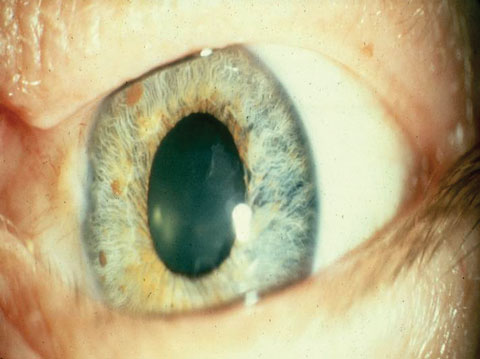 Pupil Dilation Drugs Chart