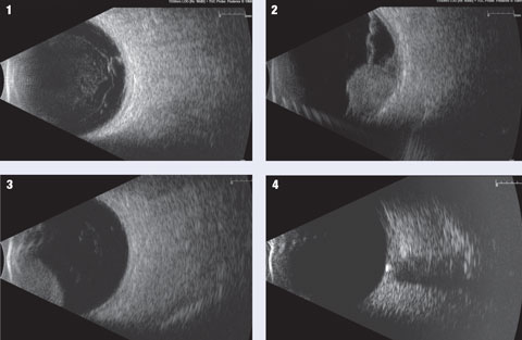 These are a few examples of the pathologies that can be imaged using B-scan ultrasonography.