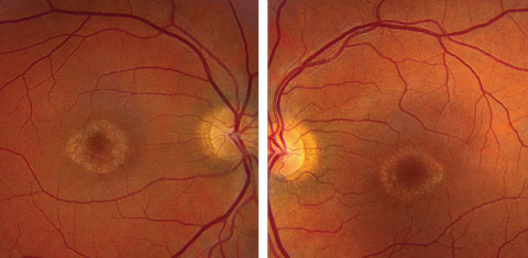 Figs. 1a and 1b. Fundus photos of the right and left eye of our patient. What do the changes in her macula represent?