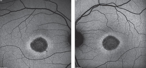 Figs. 2a and 2b. Fundus autofluorescence of the right and left eye. How do these correlate with the fundus images?
