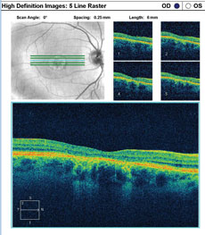 SD-OCT images show the patient's retinal state in both the right and left eye.
