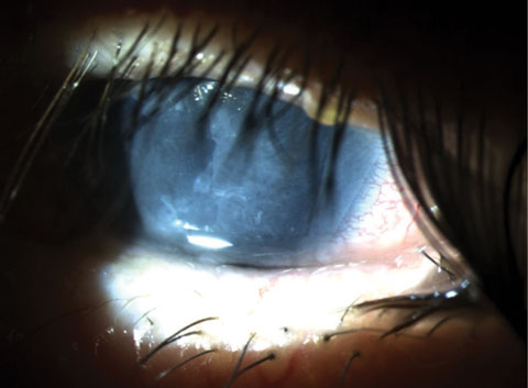 The Ins and Outs of Corneal Wound Healing