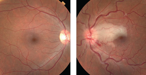 Figs. 1a and 1b. Fundus photo of the right eye (at left) was normal, but the left eye (at right) shows a large optic nerve edema, superior to the macula and infarction extending from the optic nerve to the nasal border of fovea.
