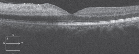 Fig. 2. OCT of the patient's left eye.
