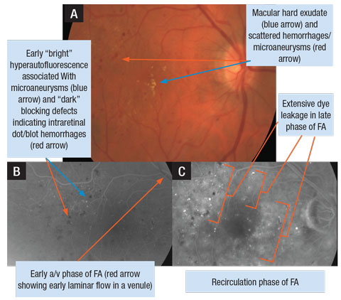 A. Retinal photograph of a patient's right eye with DME. B. FA photo of early arteriovenous (a/v) phase OD. C. FA photo of later phase (recirculation) demonstrating extensive leakage of dye in the macula OD.