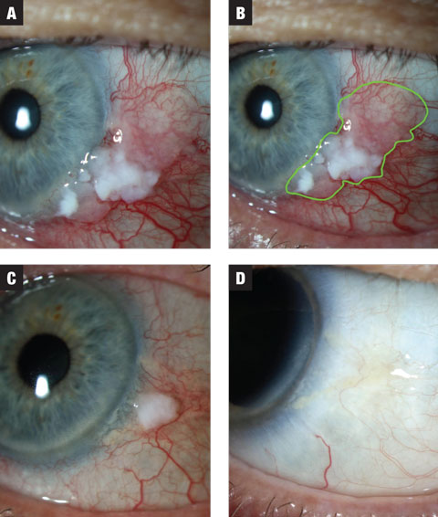 Fig. 1a. In case 1, the lesion has both leukoplakic and gelatinous zones. Treatment was initiated at MMC 0.02% QID. Fig. 1b. Estimated extent of lesion highlighted. Fig. 1c. After the first three-week course, the lesion shows dramatic reduction in size. The patient was placed on a washout period of two weeks and instructed to anticipate a second course of MMC. Fig. 1d. Lesion showed complete resolution following washout.