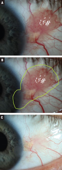 Fig. 3a. Case 3 involved a moderate-sized presumed papillomatous CIN. The patient was started on treatment INF-a2b three million IU for 10 days. Fig. 3b. Estimated total lesion size. Fig. 3c. Post treatment. Near complete resolution of growth with continued irregular corneal epithelium. Against advisement, the patient opted to observe at this time.