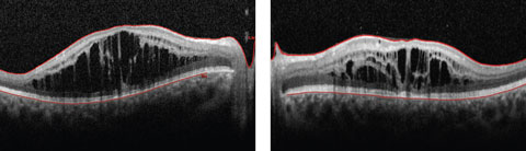 Figs. 1a and 2b. This 19-year-old patient presented with progressive blurring in the right eye and decreased night vision. What can these OCT findings tell you?