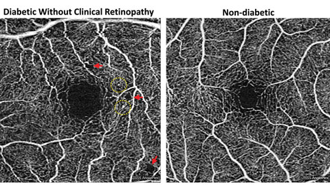 Foveal enlargement and perifoveal capillary remodeling detected with OCT-A in a diabetic eye without funduscopically visible diabetic retinopathy.