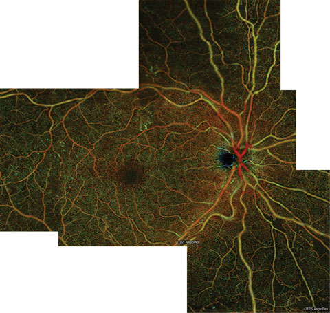 This color en face OCT-A montage of an eye with severe NPDR shows large areas of capillary nonperfusion inferior to the optic nerve, which extend into the inferior midperiphery.