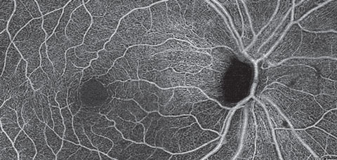 A superficial retina en face OCT-A montage of an eye with primary open angle glaucoma and severe thinning of the inferior NFL.