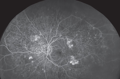 UWFI can provide expansive views of the retina and help document the progression of myriad conditions, such as diabetic retinopathy, seen here in its severe form. Photo: Optos