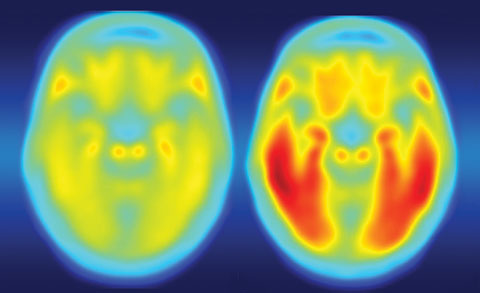 Defective tau protein, as seen on the right positron emission tomography image, accumulates in the brains of patients with Alzheimer's disease, Parkinson's disease and CTE.