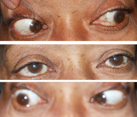 Note the normal movement of the eyes gazing to the left and straight in the top two photos. The bottom photo shows the patient's eyes in right gaze and her inability to fully abduct the right eye.