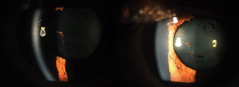 This photo shows dramatic improvement over one week of the anterior uveitis (4+cell/4+flare) with Durezol six times a day and cyclopentolate BID. Photo: Sulman Hans, OD