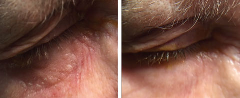 This patient's neomycin ointment hypersensitivity of the right eyelid (left) was resolved (right) with topical FML 0.1% ointment applied BID OU for four weeks.
