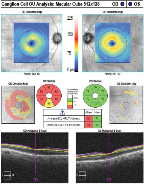 The patient's GCA correlates with rim thinning in the right eye and a normal left eye.