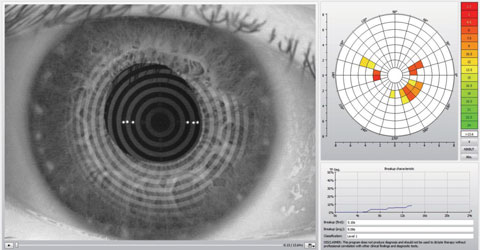 This Keratograph 5M (Oculus) image shows an assessment of a patient's noninvasive tear break-up time. Photo: Dan Fuller, OD
