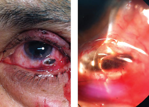 This 57-year-old patient's left eye shows the result of a blunt trauma. Can you diagnose him?