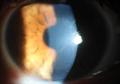 Using a slit lamp, clinicians can see CXL-associated corneal haze distributed within the treatment zone.