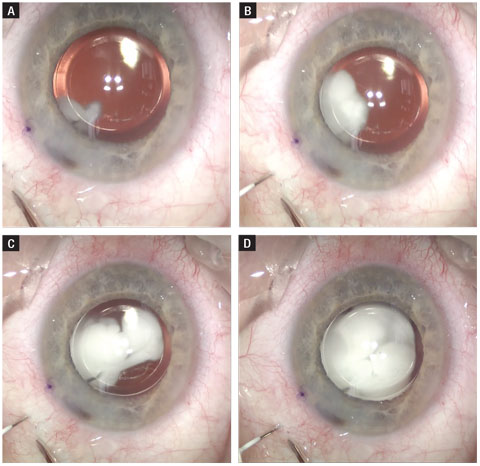 Here, this time lapse shows an intravitreal injection of triamcinolone and moxifloxacin. The needle is routed posterior to the IOL and has a similar final destination to that of an anti-VEGF injection.
