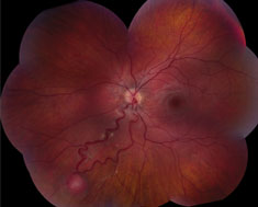 Peripheral retinal capillary hemangioma is located inferior-nasally with dilated, tortuous vasculature in Von Hippel-Lindau disease.