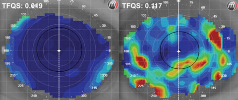 Fig. 1. Tear film quality scores (TFQS) as measured by placido disc topography. A low score (left) indicates better tear film quality than a higher score (right).
