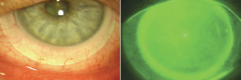 Fig. 3. At left, a scleral lens allows full coverage of the cornea and variable conjunctival coverage with a 100µm to 200µm tear layer between the lens and the corneal surface. At right, the same eye with NaFl instilled to visualize the tear layer.