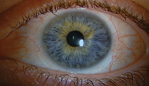 A hypersensitivity or toxic reaction to the preservative in the contact lens solution is typically characterized by conjunctival injection and superficial punctate keratitis.