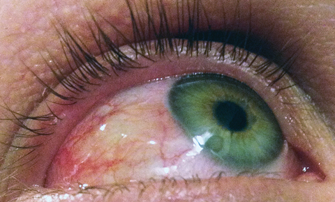 Ocular allergy often includes chemosis, conjunctival injection and eyelid edema.