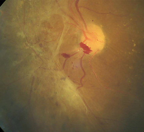 This patient shows a large area of preretinal fibrosis and a small amount of preretinal hemorrhage. The macula demonstrates exudate with macular edema. Photo: Erik Hanson, MD